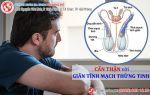 Giãn tĩnh mạch thừng tinh - Cẩn thận nguy cơ vô sinh