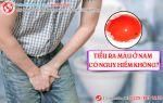 Tiểu ra máu ở nam và những cảnh báo nguy hiểm khó lường
