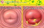 Cảnh báo: Đừng nên xem thường viêm cổ tử cung