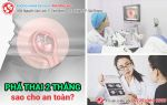 Phá thai 2 tháng có được không? Phương pháp phá thai 2 tháng an toàn