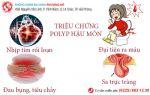 Polyp hậu môn-dấu hiệu nhận biết và cách điều trị