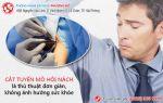 Cắt tuyến mồ hôi nách liệu có phải là giải pháp an toàn?