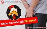 Có cách chữa sùi mào gà tại nhà hiệu quả không?
