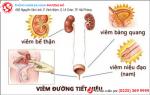 Cách chữa viêm đường tiết niệu hiệu quả cho nam giới