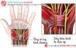 Hội chứng ống cổ tay là gì, dấu hiệu và cách hỗ trợ điều trị