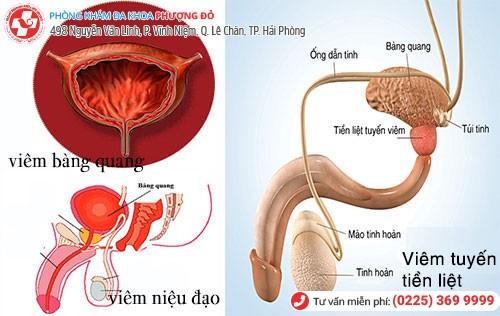 tiểu rắt là dấu hiệu bệnh tiết niệu