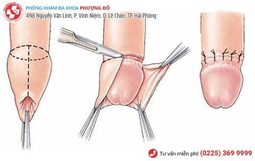 Phương pháp tiểu phẫu cắt bao quy đầu công nghệ xâm lấn tối thiểu Hàn Quốc
