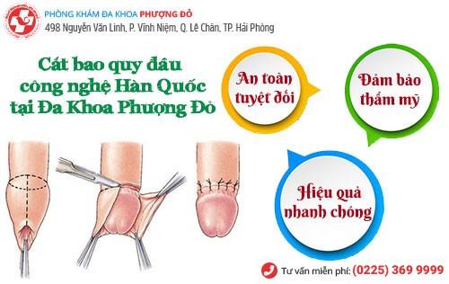 Tiểu phẫu cắt bao quy đầu giúp chữa viêm bao quy đầu hiệu quả