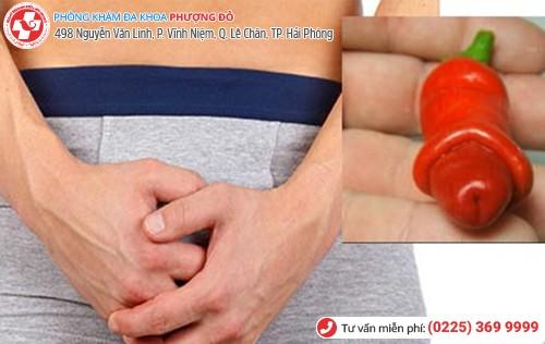Đau bộ phận sinh dục xảy ra ở nhiều vị trí
