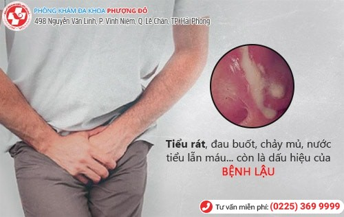 Đi tiểu bị rát vùng kín do bệnh gì gây nên?