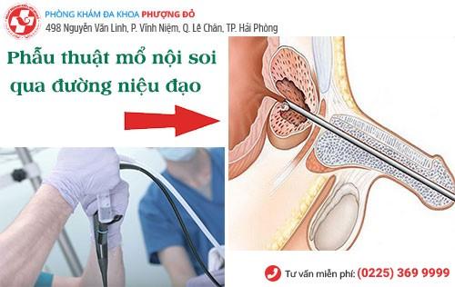 Phẫu thuật mổ nộ soi phì đại tuyến tiền liệt mang lại hiệu quả nhất hiện nay
