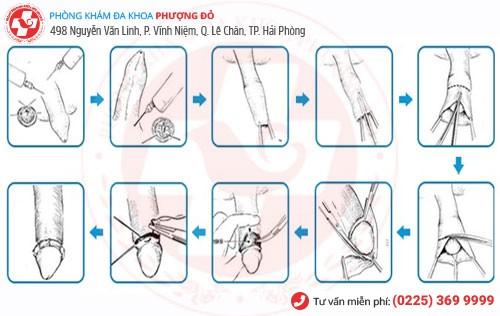 Kỹ thuật xâm lấn tối thiểu cắt bao quy đầu