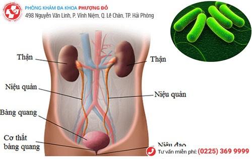 Nhiễm trùng đường tiểu
