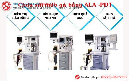 ALA - PDT - phương pháp điều trị sùi mào gà hiệu quả