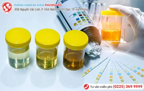 Xét nghiệm nước tiểu giúp phát hiện nhiều bệnh