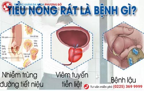 Tiểu nóng rát là dấu hiệu nhiều bệnh nguy hiểm