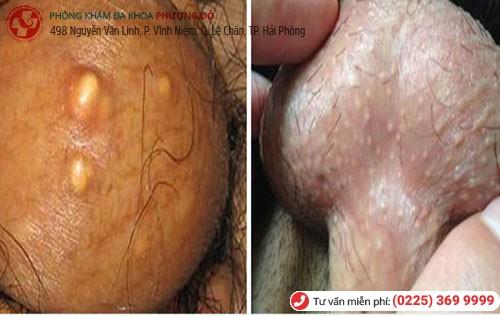 Dấu hiệu bệnh nấm bìu