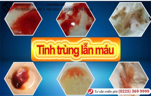 Tinh trùng lẫn máu do nhiều nguyên nhân khác nhau gây nên