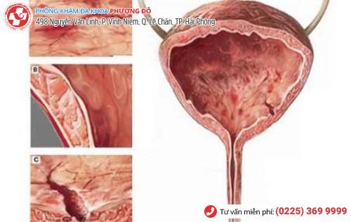 Viêm bàng quang mãn tính khiến người bệnh đi tiểu lẫn máu