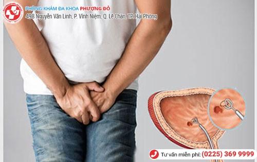 Nhận biết viêm bàng quang cấp qua dấu hiệu những cơn đau buốt, khó chịu khi đi tiểu