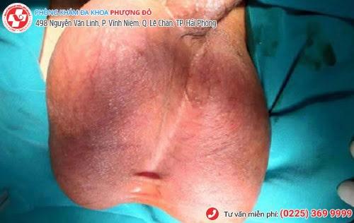 Các bệnh về tinh hoàn phổ biến thường gặp
