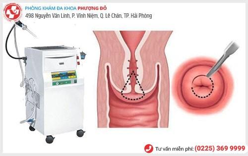 Phương pháp dao LEEp chữa các bệnh cổ tử cung hiệu quả