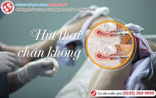 Để đảm bảo hút thai chân không an toàn cần siêu âm, kiểm tra kỹ lưỡng