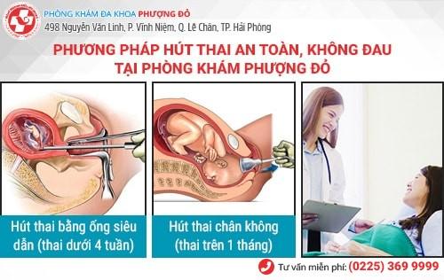 Phương pháp hút thai không đau