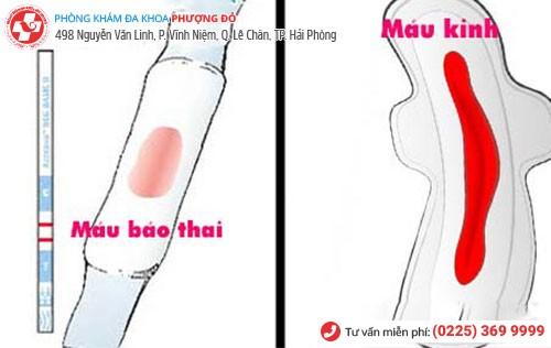 Cách phân biệt máu báo thai và máu trong kỳ kinh nguyệt