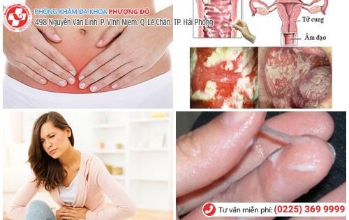 Các triệu chứng cơ bản khi nhiễm nấm
