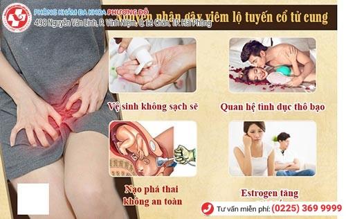 1 số nguyên nhân gây viêm lộ tuyến chính
