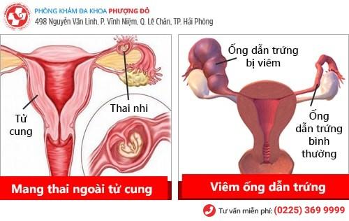 Nhận biết nhanh các dấu hiệu viêm vùng chậu nữ
