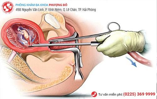 Phương pháp hút thai