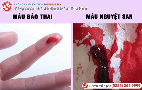 Phân biết máu báo thai và máu nguyệt san