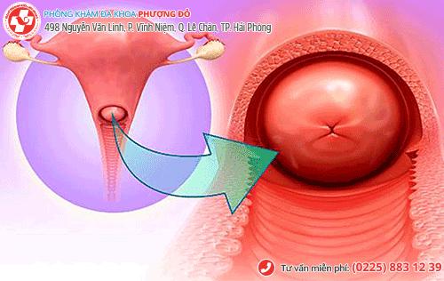 Ra huyết trắng vón cục có thể do viêm cổ tử cung