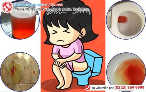 Hình ảnh nước tiểu có lẫn máu