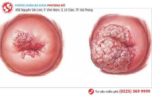 Nguy cơ ung thư cổ tử cung do viêm lộ tuyến