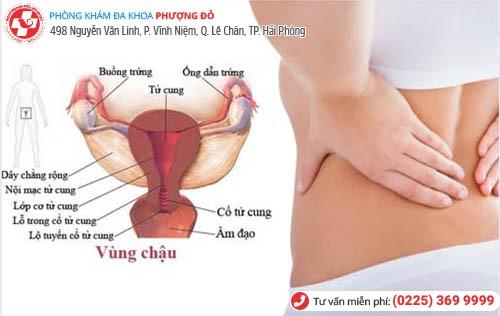 Viêm vùng chậu phổ biến ở nữ giới