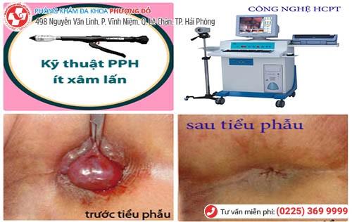 Kỹ thuật PPH
