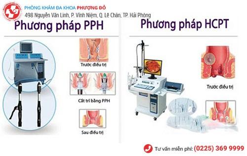 PPH, HCPT - phương pháp cắt trĩ hiệu quả hiện nay