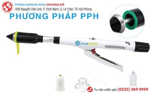 Phương pháp PPH chữa trĩ