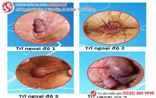 Biểu hiện bệnh trĩ ngoại