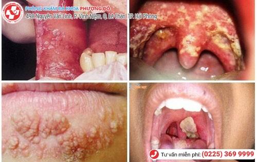 Nguy cơ ung thư vòm họng khi bị lậu ở miệng
