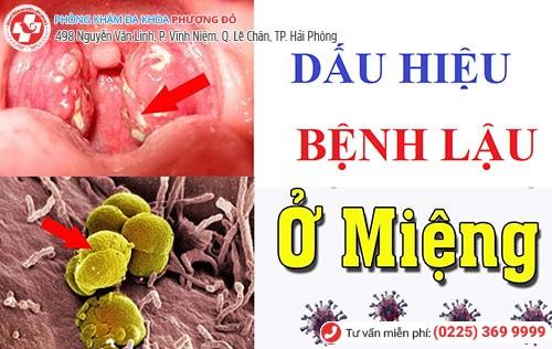 Hình ảnh bệnh lậu ở miệng