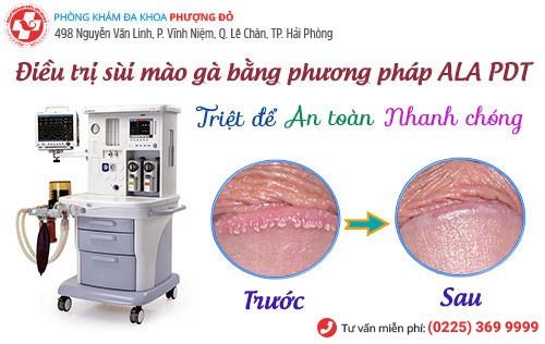 ALA-PDT - phương pháp hỗ trợ điều trị sùi mào gà tiên tiến