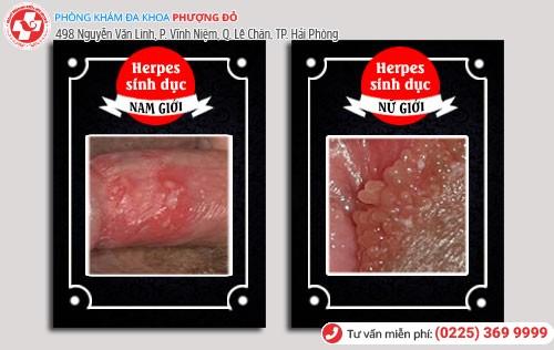 Herpes sinh dục ở nam và nữ