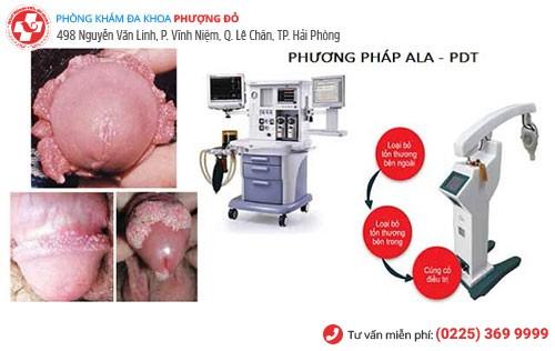 ALA - PDT - phương pháp chữa sùi mào gà hiệu quả lên đến 98%