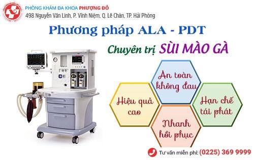 Phương pháp ALA - PDT chữa sùi mào gà được xem là phác đồ tiên tiến hiện nay