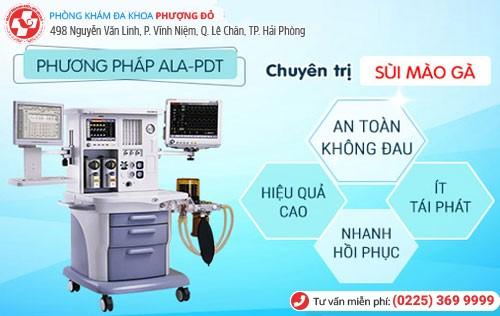 Phương pháp ALA-PDT hỗ trợ điều trị sùi mào gà
