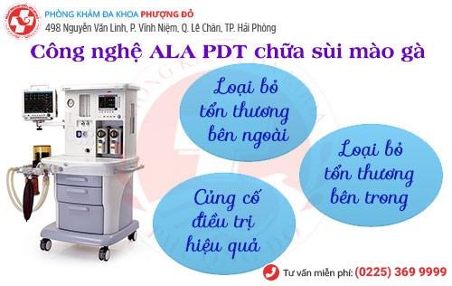 ALA - PDT - phương pháp chữa sùi mào gà tiên tiến